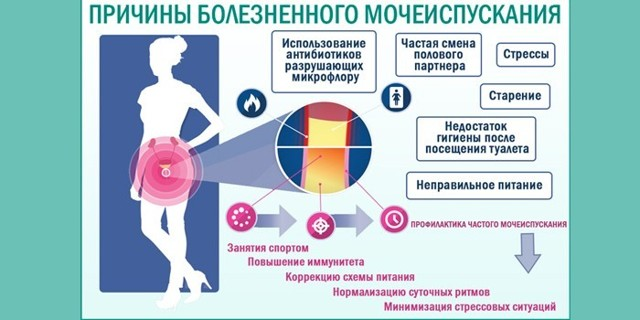 Боль при мочеиспускании у женщин - причины, диагностика и терапия