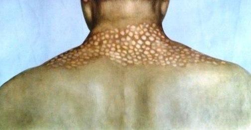 Симптомы и лечение сифилиса у мужчин