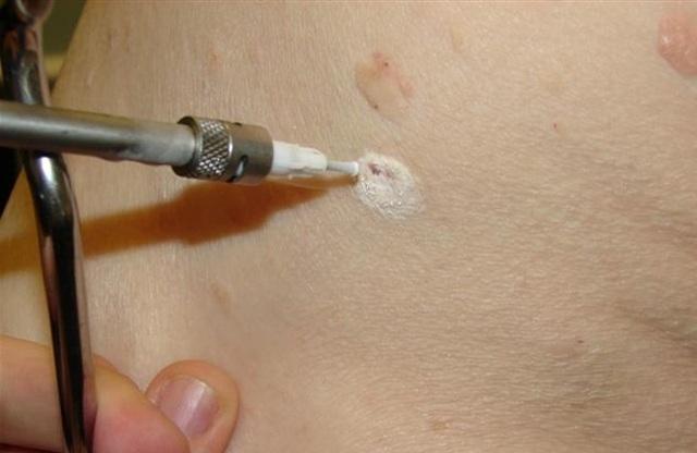 Папилломы под мышками - причины появления, методы лечения