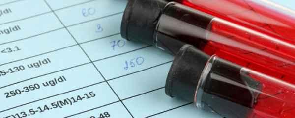 Анализ на мочевую кислоту - показания и расшифровка результатов
