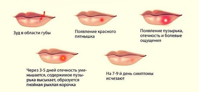Как избавиться от герпеса на губах и теле