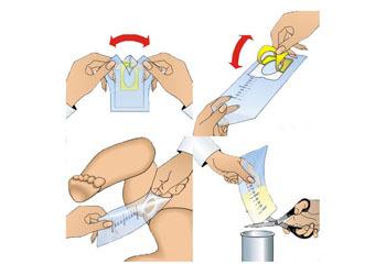Мочеприемник для новорожденных - как правильно пользоваться
