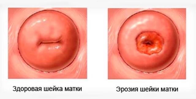 Выделения при беременности во втором триместре - норма, патология