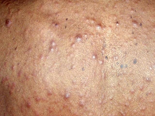Прыщи при сифилисе — как выглядят, и как от них избавиться?