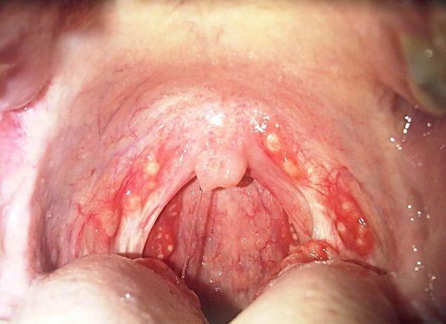 Гонококковый фарингит: инкубационный период, симптомы и лечение