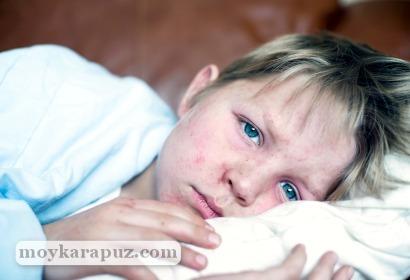 Цитомегаловирус у детей - симптомы, лечение, опасность ЦМВ