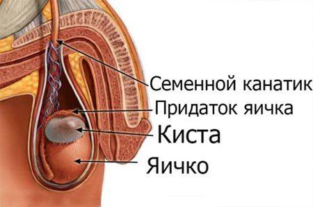Киста яичка у мужчин: причины, симптомы, способы лечения