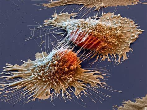 Гепатит С - последствия у мужчин и женщин