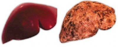 Осложнения гепатита С, В, А, как их избежать