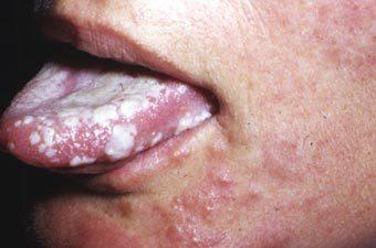 Герпес 3 типа: особенности симптомов и лечения
