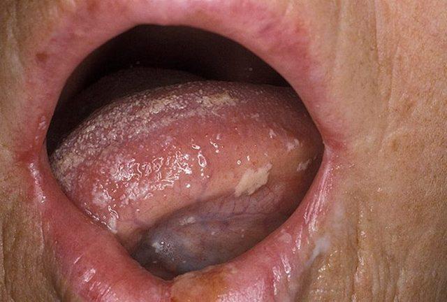 Молочница на языке у взрослых - симптомы и медикаментозное лечение