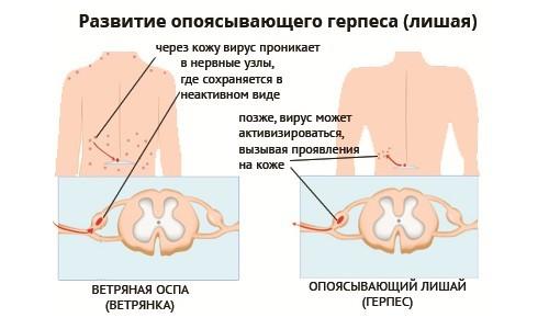 Опоясывающий герпес - что это, симптомы, лечение, осложнения