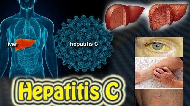 Стадии гепатита С - развитие заболевания от ранней до поздней формы.