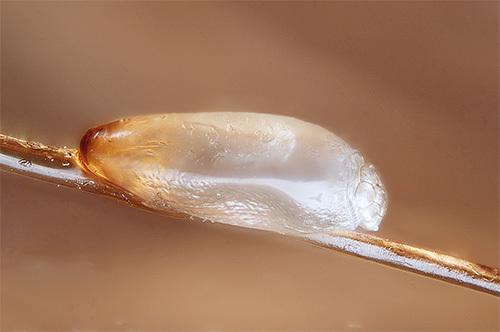 Как выглядят гниды, как их распознать?