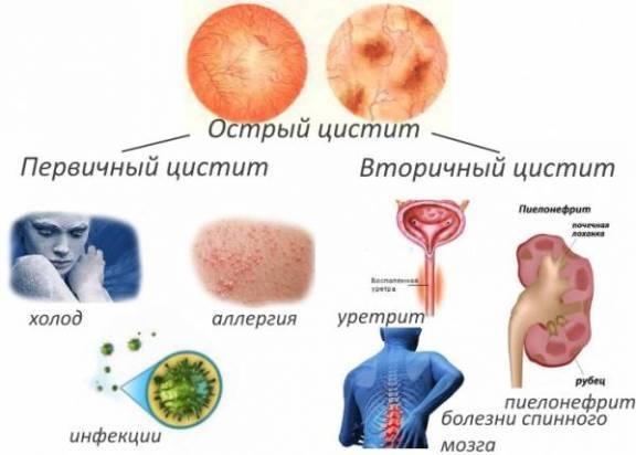 Оранжевая моча - причины и диагностика изменения цвета