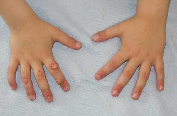Бородавки у детей на руках, как вывести и профилактировать?