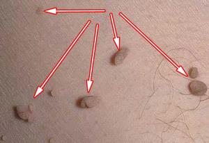 Остроконечные кондиломы: причины, разновидности, лечение и последствия
