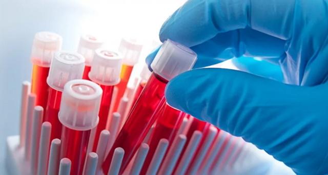Антитела к хламидиям в крови — виды и расшифровка анализа на igg